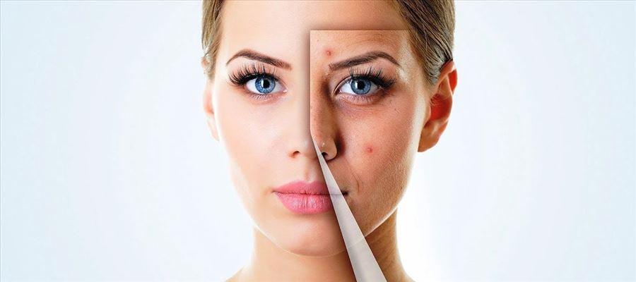 性价比高的护肤品推荐-雅漾舒缓保湿面膜